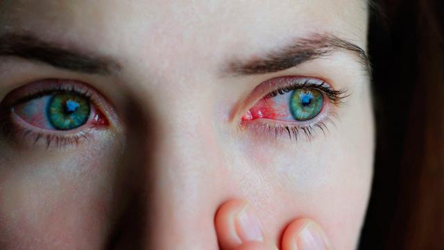 Курение и контактные линзы