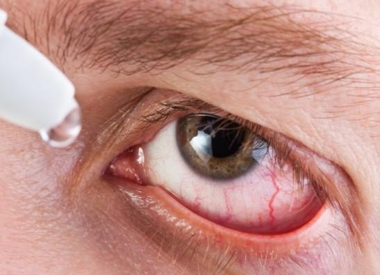 Глазные капли от воспаления: перечень капель по видам воспаления