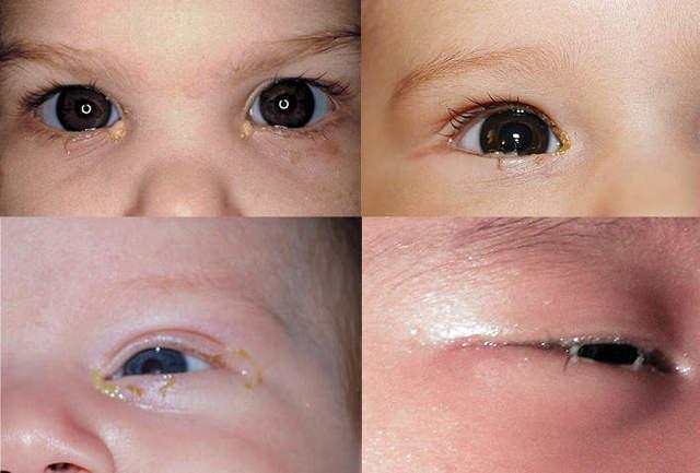 Гноится глаз у новорожденного грудничка – чем лечить? Ответ здесь!