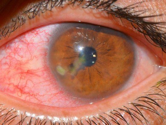 Ночные линзы для восстановления зрения