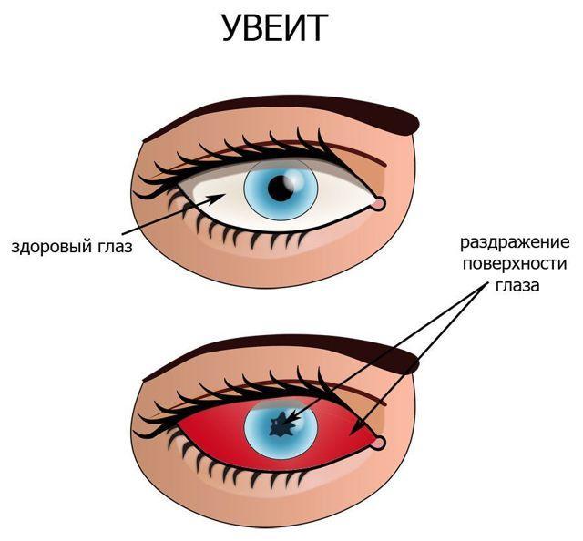 Глазные капли Тропикамид: описание, противопоказания, цены