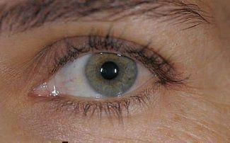 Непроходимость слезного канала - причины, симптомы и методы лечения