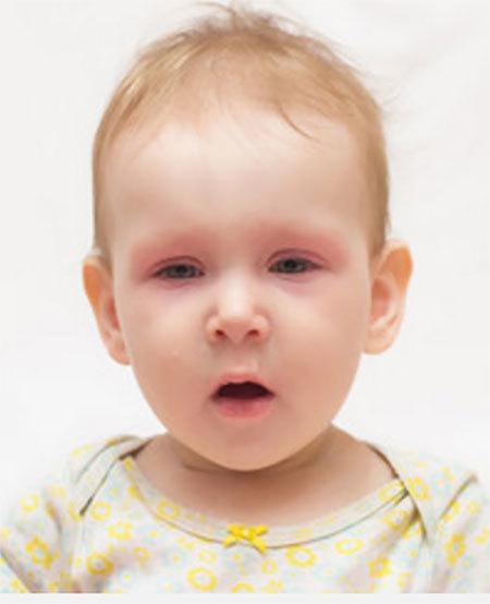 Аллергический конъюнктивит у ребенка - симптомы и методы лечения!