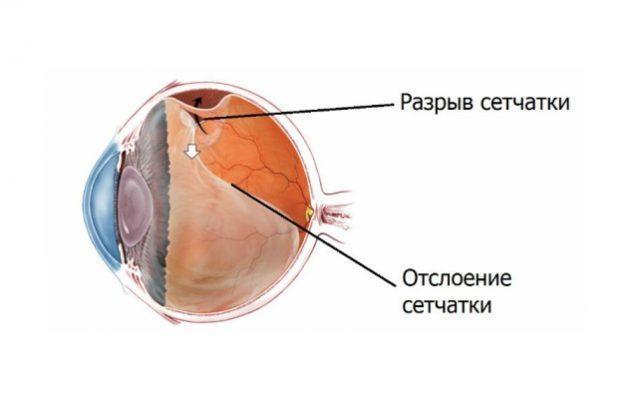 Укрепление сетчатки глаза лазером - подготовка, этапы проведения