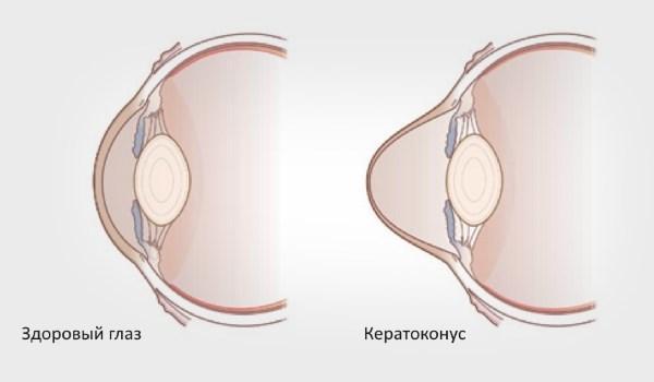 Кератоконус - что это такое: описание, симптомы и лечение