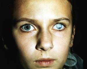 Резкое ухудшение зрения: причины, лечение и профилактика