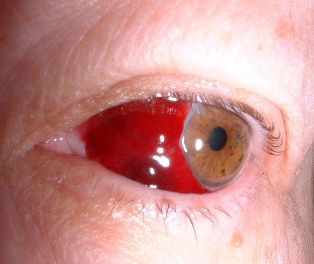Гемофтальм – причины и лечение, возможные осложнения