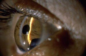 «Косопт» - глазные капли: как помогает этот препарат и как его использовать?