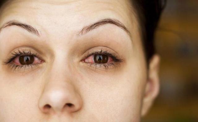 «ОКВИС» глазные капли - описание, инструкция по применению