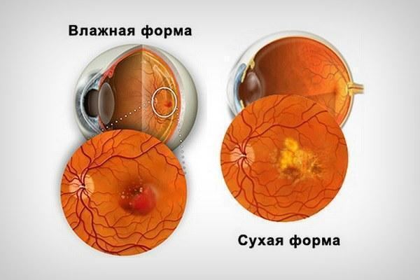 Макулодистрофия сетчатки глаза - лечение и профилактика!