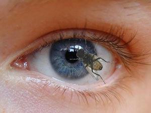 Черные точки перед глазами - что это такое? Ищи ответ здесь!