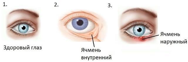 Левометицин – капли для глаз: описание, инструкция по применению