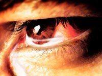 Иридоциклит - что это: описание болезни, симптомы и лечение