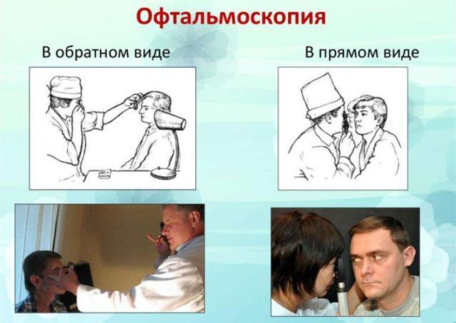 Врожденная катаракта у детей - причины, симптомы и лечение!