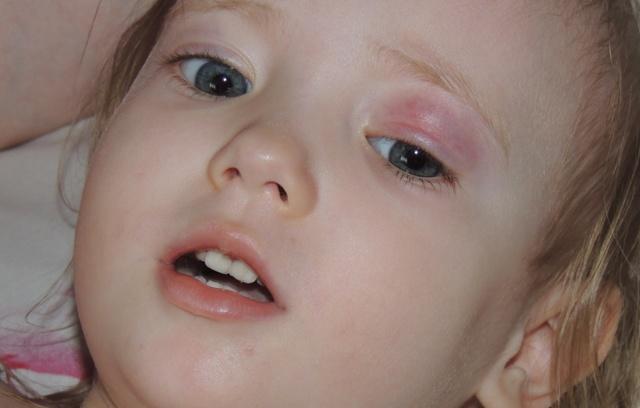 Халязион верхнего века у ребенка - симптомы, лечение и профилактика!