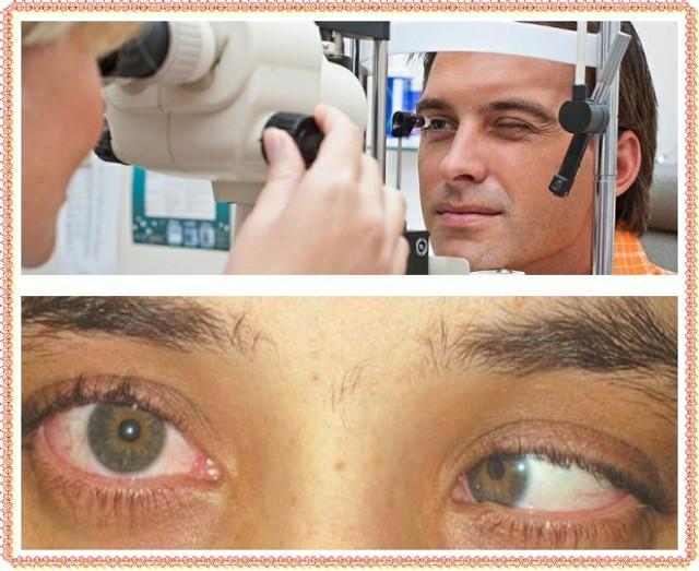 Двоится в глазах - причины, лечение и меры профилактики