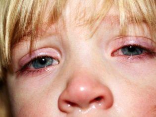 Глазные капли Тобрекс: инструкция по применению, дозировка