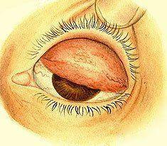 Гидрокортизоновая мазь для глаз - показания, инструкция, аналоги, цена
