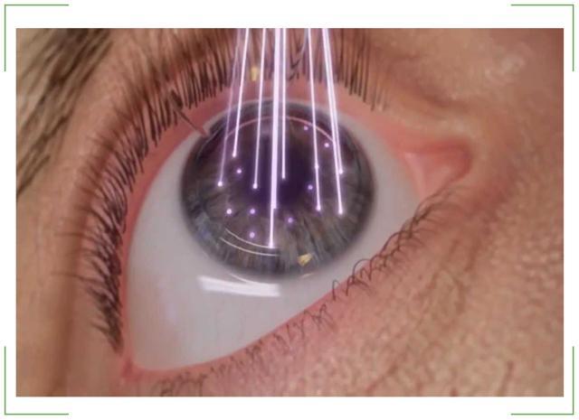 Лазерная коррекция зрения: плюсы и минусы, этапы проведения