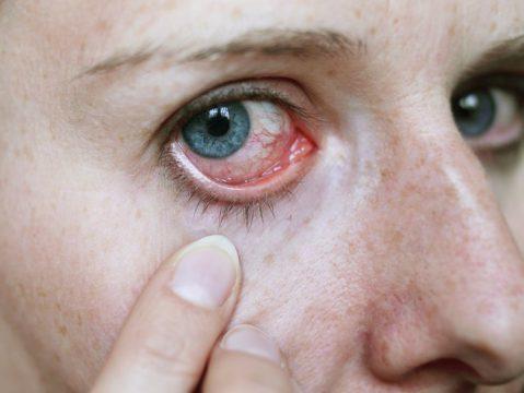 Резь в глазах: причины и лечение, меры профилактики