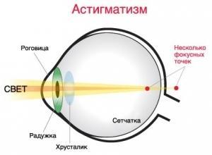 Какие линзы при астигматизме использовать? Ответ здесь!
