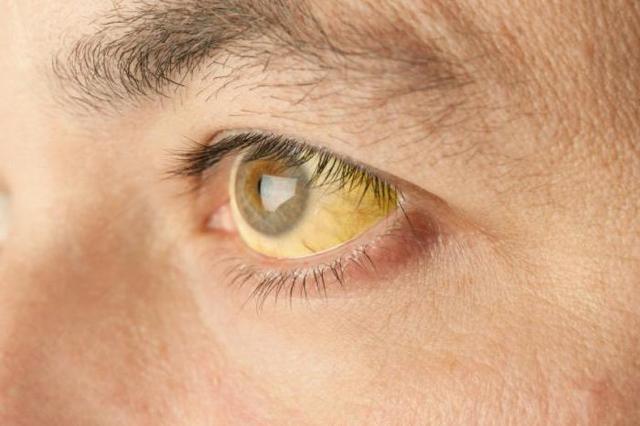 Белки глаз желтые: причины и как лечить, профилактика