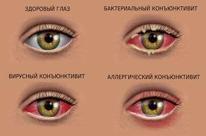 «Монтевизин» - глазные капли: показания и противопоказания, дозировка