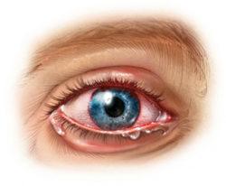 Болит правый глаз и правая сторона головы - причины и лечение!