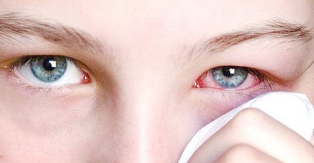 Красный глаз, лопнул сосуд - что делать? Ищите ответ здесь!