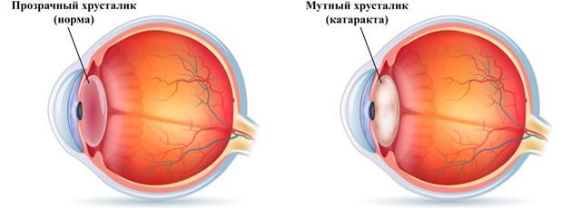 Артифакия глаза - что это и как лечить, установка искусственного хрусталика