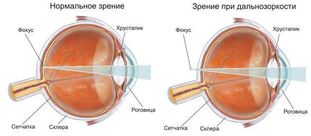 Дальнозоркость: как восстановить зрение