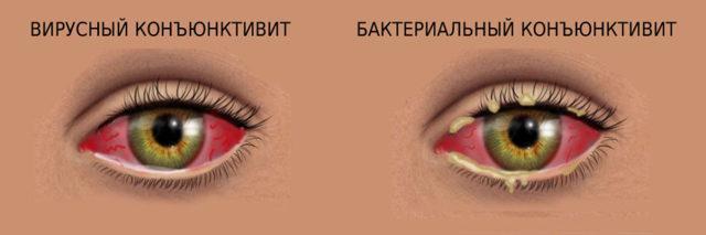 Гнойный конъюнктивит глаз - лечение у взрослых и профилактика!