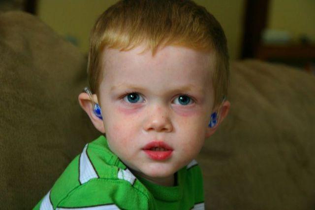 Красные круги под глазами у ребенка – причины и лечение!