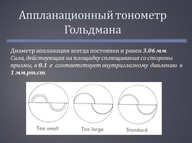 Глазное давление - норма в 30, 40, 50, 60 лет, причины отклонений