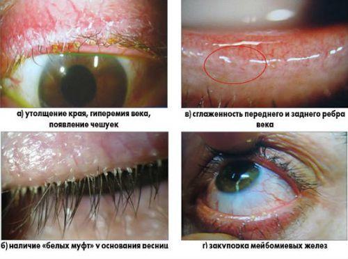 Глазная мазь от воспаления век - выбираем лучшее средство!