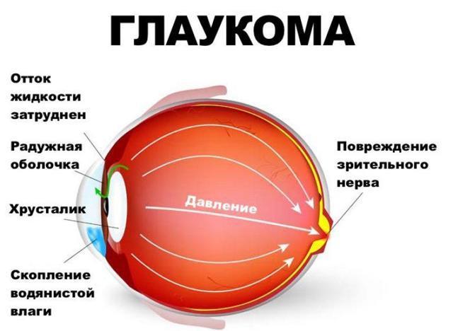 Глазное дно: как проверяют, зачем нужна эта процедура, как к ней готовиться?