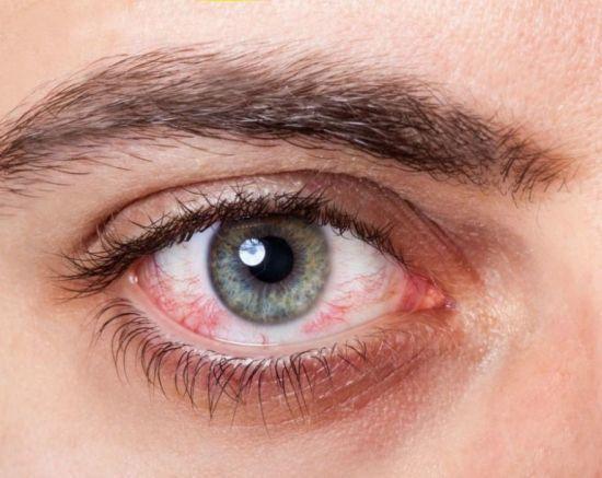 Офтагель для глаз - описание, инструкция по применению