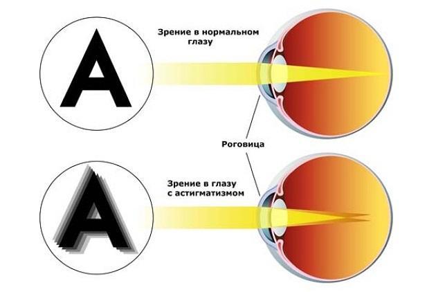 Лечение астигматизма у взрослых - эффективные методы и средства!