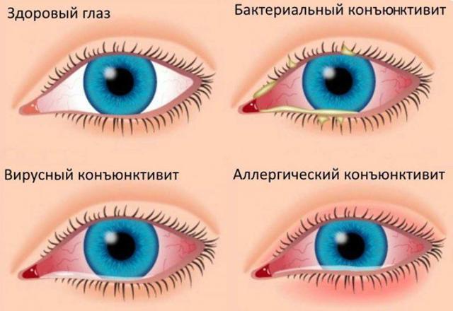 Капли глазные противовоспалительные