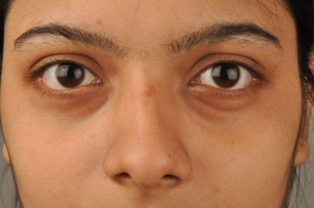 Припухлость под глазом - из-за чего возникает и как избавиться?
