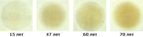 Катаракта глаза: признаки, симптомы, профилактика