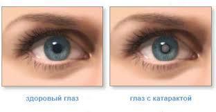 Народные способы лечения катаракты - 11 лучших способов