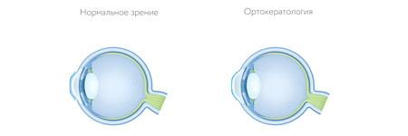 Ортокератологические линзы: описание, принцип действия, применение