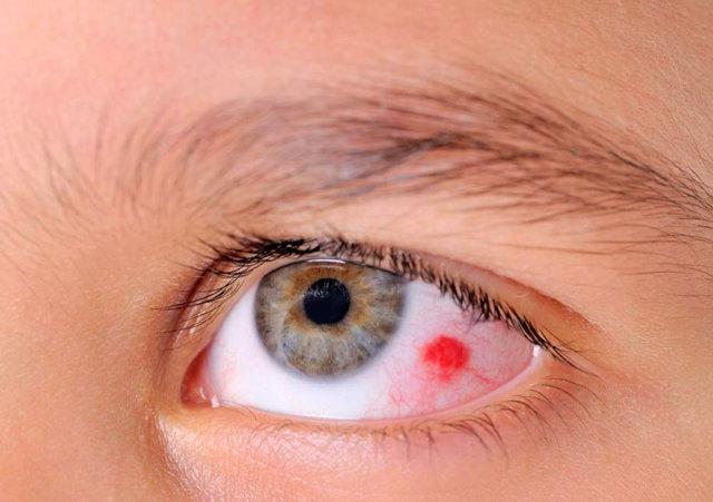 Почему лопаются сосуды в глазах, что делать? Ответ здесь!