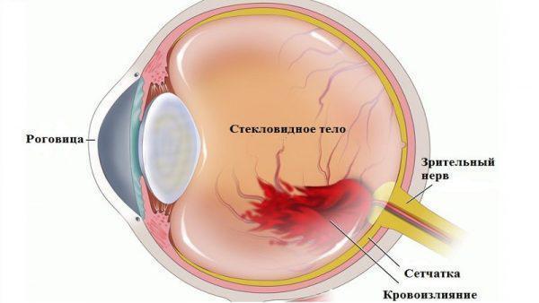 Что делать, если сперма попала в глаз