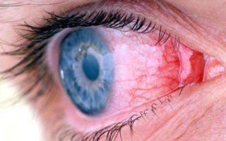 Как передается конъюнктивит - пути заражения, симптомы и лечение