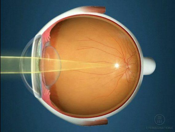 Почему нельзя рожать с плохим зрением? Ищите ответ здесь!