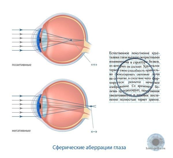 Асферические линзы для глаз - описание, характеристики, средние цены