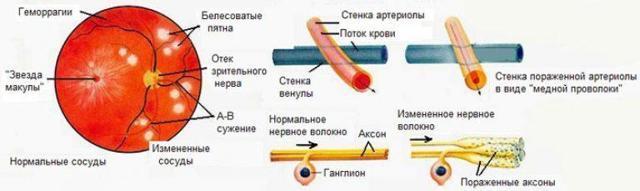 Ангиосклероз сетчатки: что это такое, симптомы и лечение!