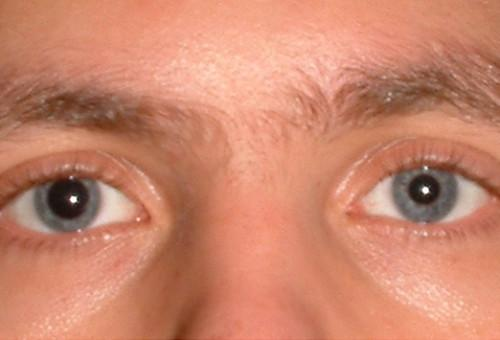 Фоновая ретинопатия и ретинальные сосудистые изменения - эффективное лечение!